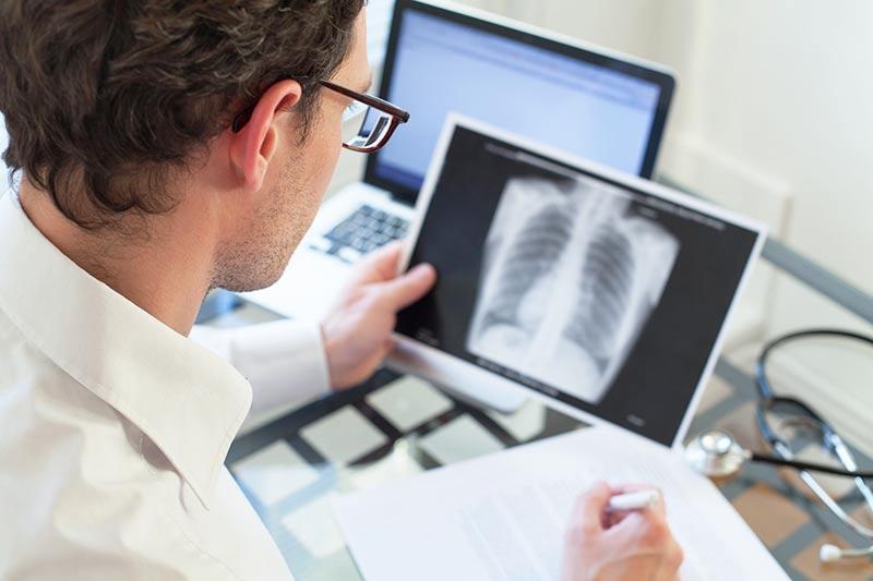 tuberkulez-legkih