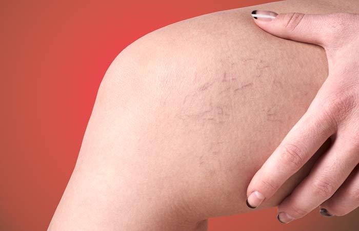 склеротерапия для удаления сосудов на ногах