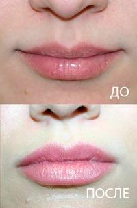 фотография до и после коррекции формы губ